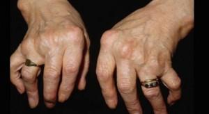 Badania: glony pomogą leczyć zwyrodnienia stawów