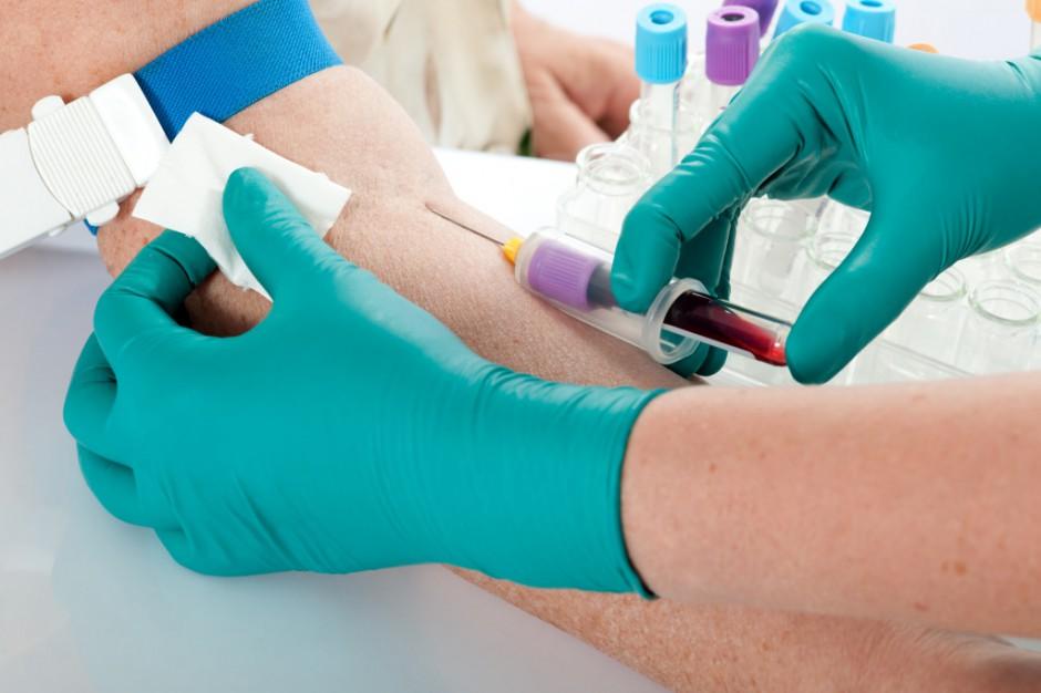 Rzecznik CBA z apelem o krew 0 Rh+ dla funkcjonariuszki