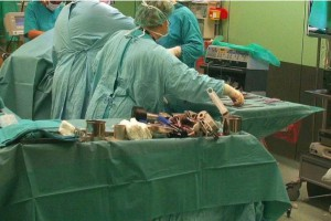 Katowice: wybudzili pacjentkę podczas operacji. Dla jej zdrowia