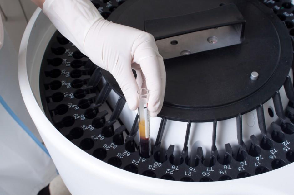 USA: jest prototyp szybkiego testu wykrywającego zakażenie wirusem eboli