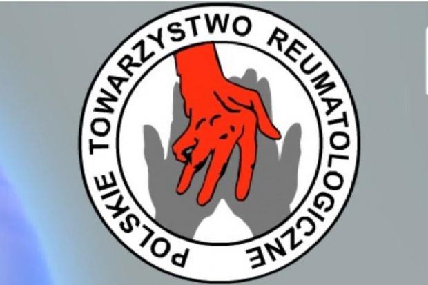 MZ tłumaczy stanowisko departamentu - nie ma ograniczeń w dostępie do terapii w RZS
