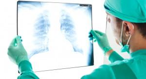 Rak płuca: czas nie jest bez znaczenia