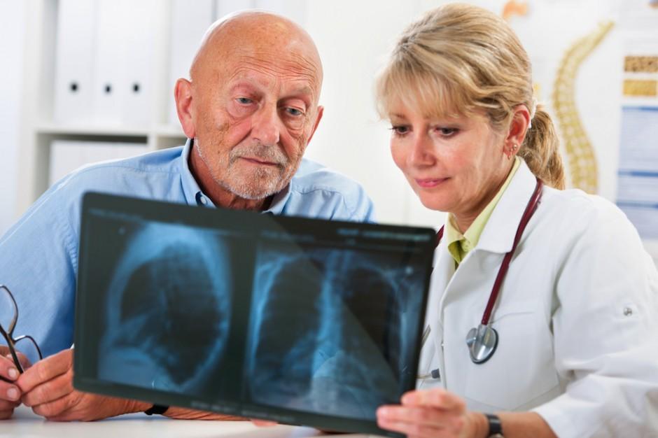 Eksperci: u palaczy większe ryzyko raka płuca; kiedy się badać?