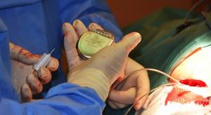 Włocławek: szpital będzie wszczepiał kardiowertery