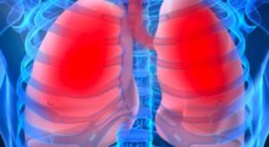 Gdańsk: pierwszy przeszczep płuc na Pomorzu