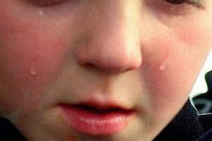 Czym mogą się poparzyć dzieci? Najczęściej gorącą herbatą