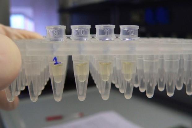 Naukowcy pracują nad testem śliny do wykrywania autyzmu