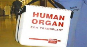 USA: jeden dawca pomógł setce osób. Transplantolodzy: to ewenement na skalę światową