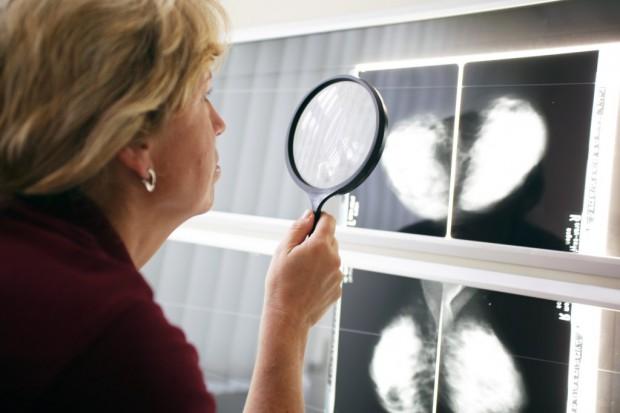 Wielkopolska: 38 proc. więcej zachorowań na nowotwory
