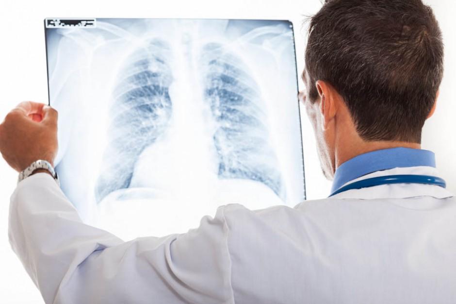 Samoistne włóknienie płuc: zabija szybciej niż rak