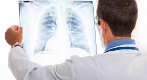 Eksperci: brakuje ośrodków kompleksowej diagnostyki i leczenia raka płuca