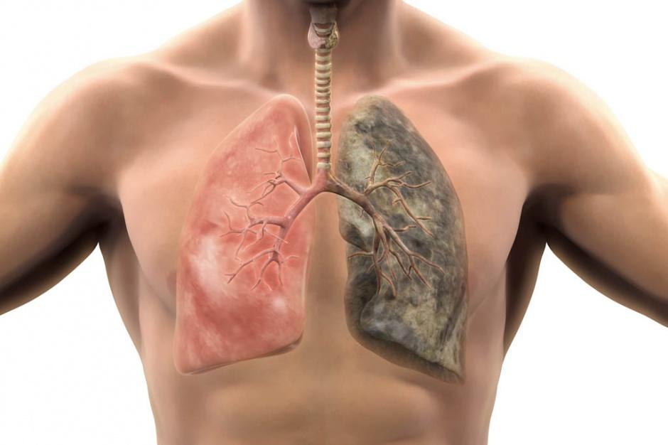 Eksperci: leczenie chorych na raka płuca niedofinansowane