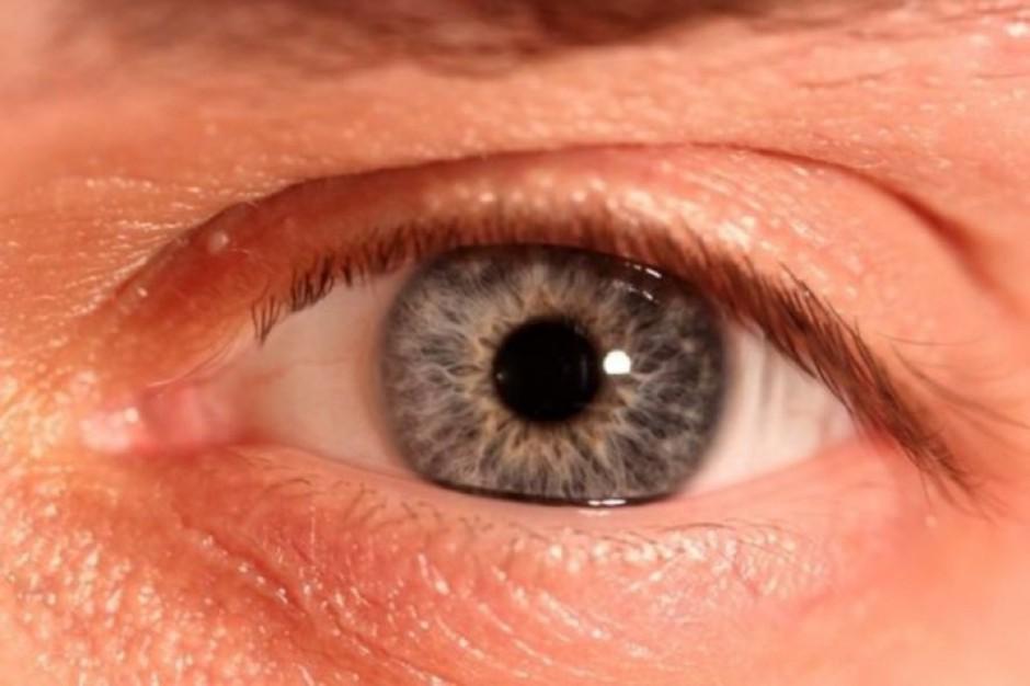 Po zdiagnozowaniu cukrzycy potrzebna pilna kontrola u okulisty