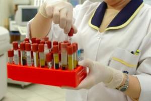Eksperci: nie poradzimy sobie z HCV bez poprawy diagnostyki