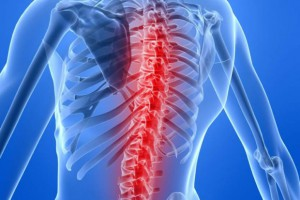 Australia: lekarze wszczepili tytanową kopię kręgosłupa