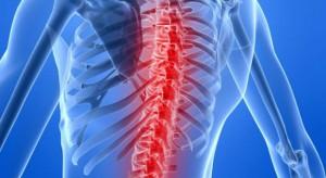 Eksperci: bóle w dole pleców występują już częściej, niż nadciśnienie