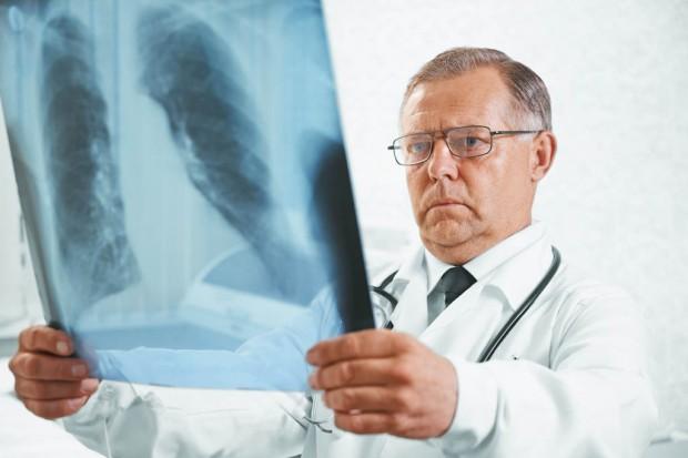 Eksperci: rośnie wykrywalność raka płuca, jest szansa na lepszą profilaktykę