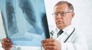 Eksperci: mamy czas rewolucji w leczeniu raka płuca