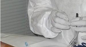 Prof. Helbig: coraz więcej przeszczepów szpiku od dawców nie w pełni zgodnych