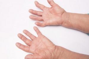 Eksperci: gwałtownie rośnie zachorowalność na dnę moczanową