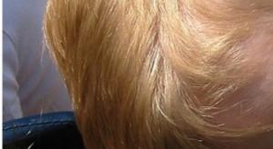 Naukowcy: enzym we włosach może być wczesnym biomarkerem schizofrenii