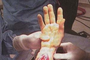 Pierwszy przeszczep obu rąk w Wielkiej Brytanii; w Polsce już taki był