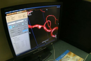 Poznań: w Szpitalu Klinicznym chcą leczyć udary mózgu, poszukują neurologów