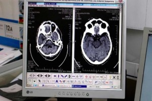RPO wystąpił do TK ws. regulacji dot. śmierci mózgu