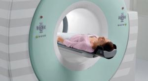 Nowy znacznik w badaniu PET łatwiej wykryje białko tau charakterystyczne dla Alzheimera
