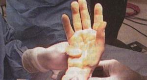 USA: przeszczepili mu obie dłonie, a on zaczyna grać w bejsbol