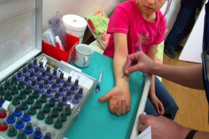 Osoby po wstrząsie anafilaktycznym wymagają opieki alergologa