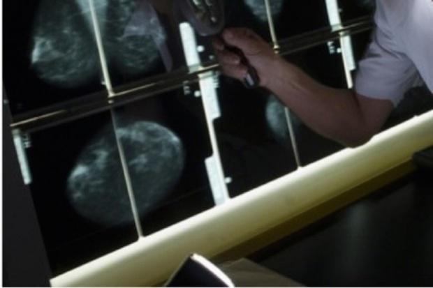 Polskie breast cancer unity nabierają kształtów