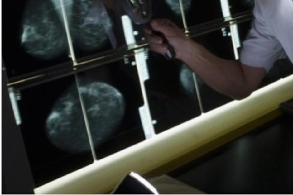 Niemcy: od 2009 r. trwa program badań przesiewowych raka