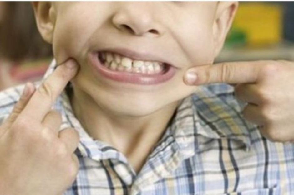 Gdańsk: chirurg z USA zrekonstruował nerw twarzowy dwójce dzieci