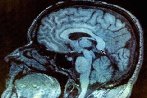 Bariera krew - mózg pokonana