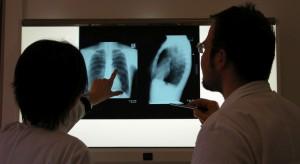 Pacjenci apelują do rządu o szansę dla chorych na raka płuca