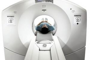 PKPO: powstała ścieżka diagnostyki i leczenia pacjentów z podejrzeniem raka płuca