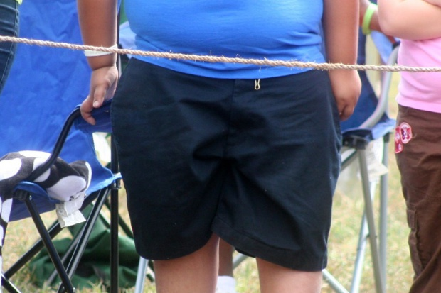 RPD pyta ministra zdrowia o działania dotyczące otyłości i nadwagi u dzieci