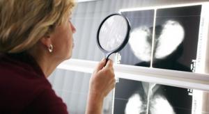Mazowieckie: 70 placówek POZ przystąpiło do programu wykrywania nowotworów głowy i szyi
