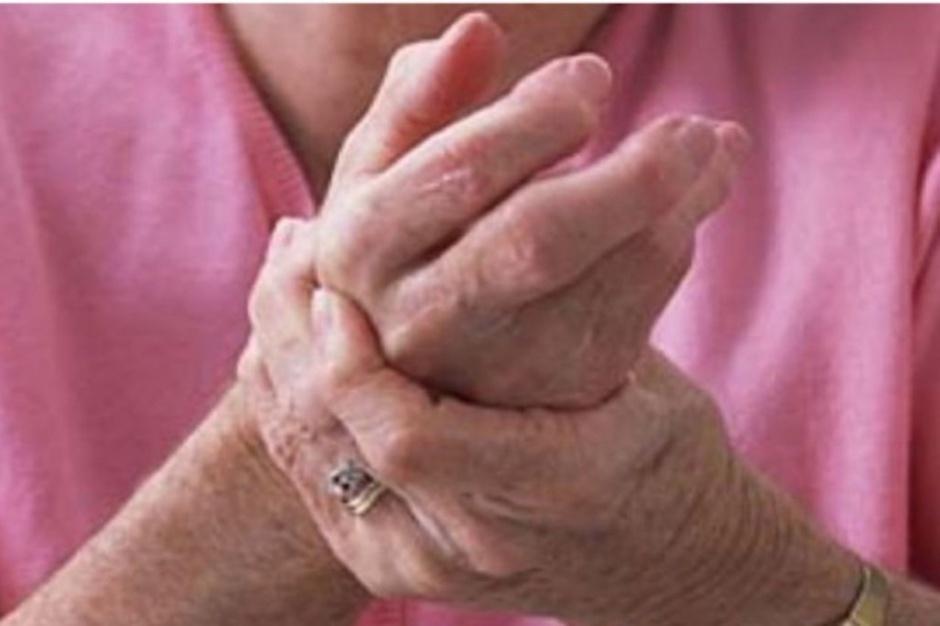 Raport: łączenie choroby reumatycznej z pracą zawodową jest trudne