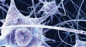 Naukowcy z Gdańska odkryli związek, który może pomóc w terapii alzheimera