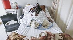WHO apeluje o ewakuację chorych i rannych z syryjskiego Aleppo