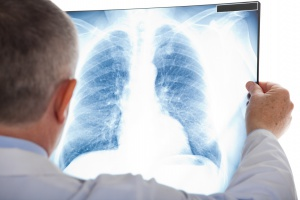 Białystok: powstaje Centrum Diagnostyki i Leczenia Raka Płuca