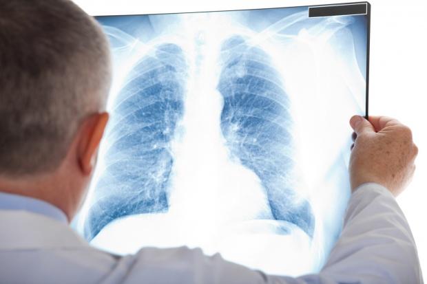 Kalisz: nowoczesny sprzęt dla dwóch pracowni szpitala chorób płuc w Wolicy