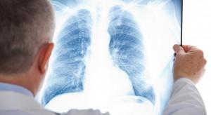 ESMO 2017: przełomowe badania nad terapiami w zaawansowanym raku płuca