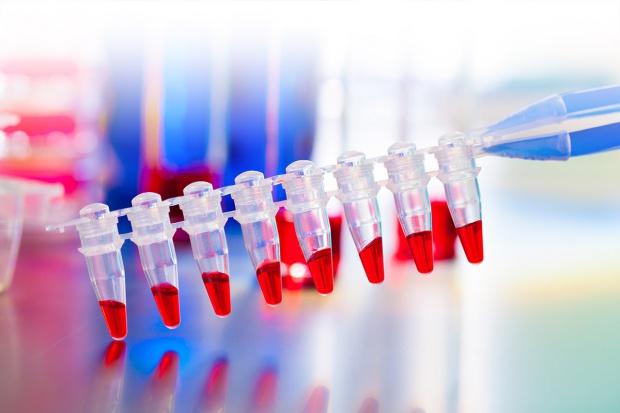 Nowości w leczeniu szpiczaka plazmocytowego