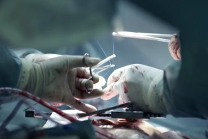 Eksperci: co trzeci przeszczep serca wykonywany jest w Instytucie Kardiologii
