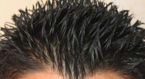 Laserowo drukowane mieszki włosowe