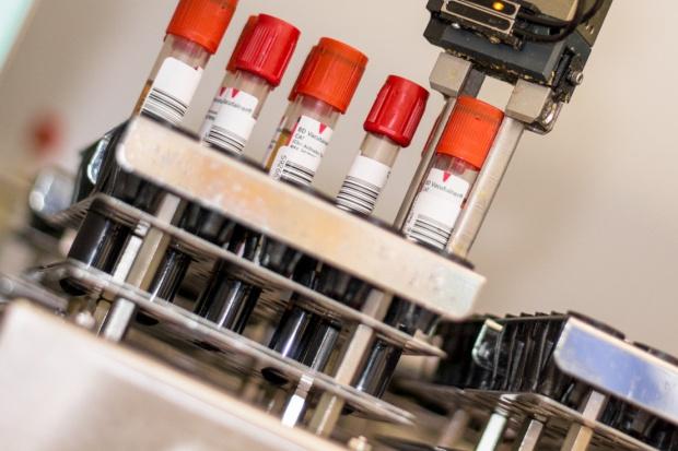 Laboratoria diagnostyczne: co czwarte poza szpitalem