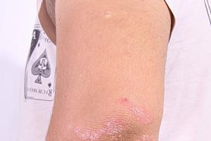 Eksperci: terapia chorych na łuszczycę wymaga indywidualizacji